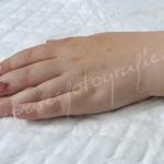 Wond nagel